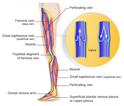 schema-perforating-vein-big-01
